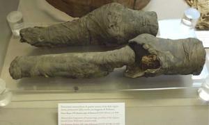 Portada - Piernas momificadas halladas en la tumba de la reina Nefertari, posiblemente pertenecientes a la propia reina, según demuestra una reciente investigación. La tumba de Nefertari, saqueada hace siglos, fue abierta en el Valle de las Reinas en el año 1904. Desde entonces se ha debatido entre los expertos en egiptología a quién pertenecían estas piernas momificadas.