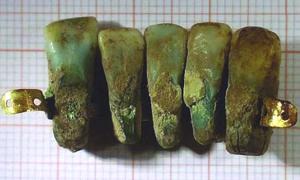 Portada - Prótesis dental medieval descubierta recientemente en Italia. Fotografía: Universidad de pisa.