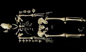Portada-Esqueleto de una mujer de hace 7.000 años que pudo ser víctima de la leucemia, lo que la convertiría en el caso más antiguo conocido de esta enfermedad. Foto: Universidad de Tubinga
