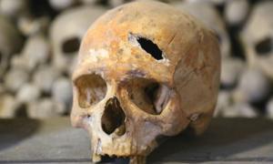 Cráneo humano que muestra golpe en la cabeza (Perthsnap / Adobe Stock). Imagen representativa solamente, no el cráneo real encontrado en Rothwell.