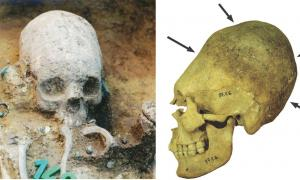 Izquierda: Parte superior del cuerpo de la tumba 43 durante la excavación. La niña tenía un cráneo deformado artificialmente, fue colocada en una tumba con un nicho lateral y ricamente equipada con un collar, aretes, un peine y cuentas de vidrio. La niña pertenecía a un grupo de personas de origen no local y hábitos alimenticios similares, que parecían haber llegado al sitio unos 10 años después de su establecimiento. (Museo Wosinsky Mór) Derecha: Cráneo artificialmente deformado de una mujer adulta. La uni