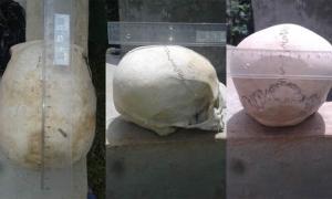 Se están midiendo varios de los cráneos extendidos o alargados. Fuente: © Philip J.S. Jones