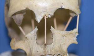 El estudio genético incluye la secuencia completa del genoma de una mujer que vivió hace 35.000 años, extraída de un cráneo encontrado en Rumania en la cueva Peştera Muierii.