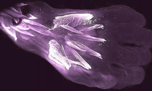 los músculos del dorso de una mano de embrión humano de 10 semanas de edad llamada dorsometacarpales (los dos músculos horizontales más pequeños resaltados en el centro) se perderán o se fusionarán con otros músculos durante el desarrollo. Fuente: Diogo, Siomava, Gitton.
