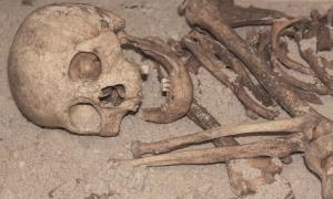 Dientes faltantes del esqueleto humano antiguo
