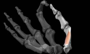 Los investigadores utilizaron software de modelado 3D para reconstruir manos antiguas y luego agregaron el músculo crítico del pulgar humano al modelo.