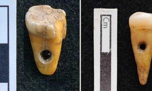 Los dos dientes humanos perforados de 8,500 años encontrados en Çatalhöyük en Turquía. Fuente: Scott D. Haddow / Universidad de Copenhague