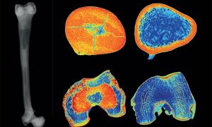 La investigación sobre un esqueleto de 6000 años ha revelado la presencia innegable de un raro trastorno genético conocido como enfermedad ósea por cálculos u osteopetrosis. Izquierda: fémur izquierdo en una radiografía. Derecha: cortes de tomografía computarizada del mismo fémur (centro) se comparan con los de un individuo sano (extremo derecho).