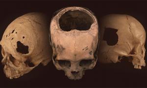 cráneos antiguos con evidencia de trepanación, un agujero revelador que se cortó quirúrgicamente en el cráneo, encontrado en Perú. Fuente: University of Miami