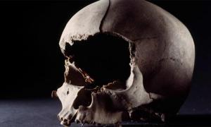El cráneo de un hombre, de 25 a 40 años, con la cara cortada con un arma afilada. La cabeza fue encontrada en un pozo a las afueras de una casa del siglo IX en Aarhus, Dinamarca Fuente: Rogvi N. Johansen / Museo Moesgaard