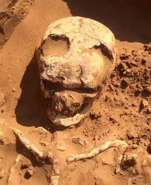 El cráneo del guerrero tenía grandes agujeros hechos por trepanación. (Arqueología de Astrakhan / Uso Justo)